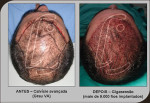 implante capilar 6