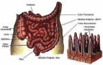 intestino preso 3